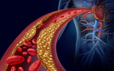 ¿Qué es el colesterol y cómo podemos controlar los niveles en nuestro cuerpo?
